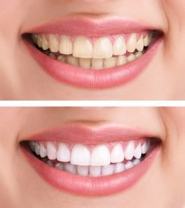 Teeth Whitening Haymarket and Gainesville
